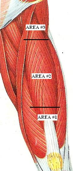 Fig. 1. Kneading of the rectus femoris muscle