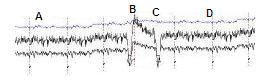 Fig. 1. Normal EEG and its correlation with the visual system