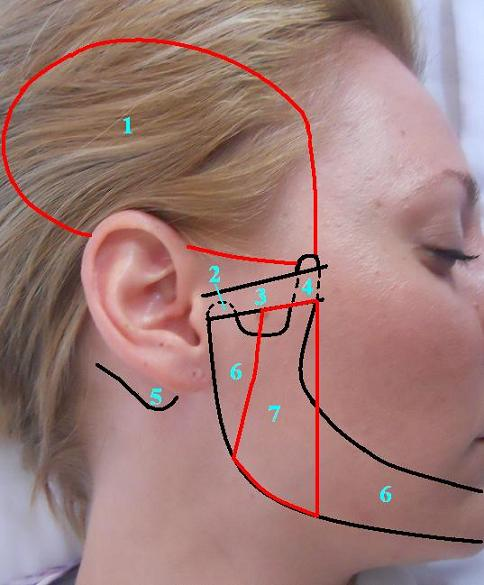 Fig.2. Anatomical orienteers in the area of TMJ