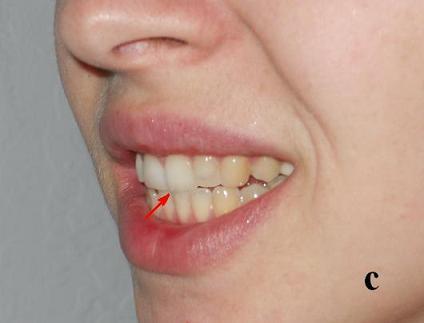 Fig.1c. Insial bite