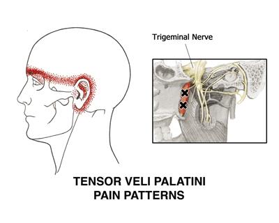 Fig. 1. Pain pattern for m. tensor veli palatini