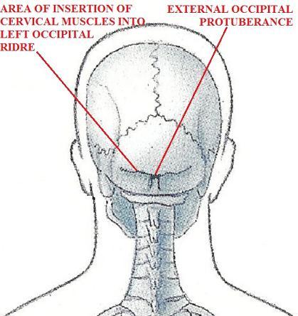 Fig. 2. Posterior skull and occipital ridge