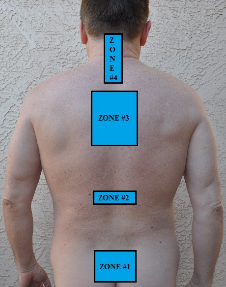 Fig. 1. Pattern of CTZs distribution in patients with CH