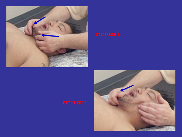 Fig. 3. Passive stretching of the masseter muscle while applying deep-tissue work