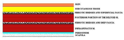 Fig. 1. Arrangement of the soft tissue