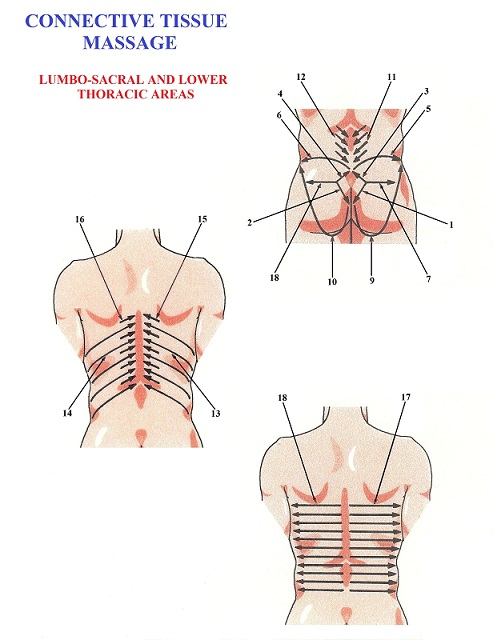 Fig. 4. Protocol of CTM in the lower back