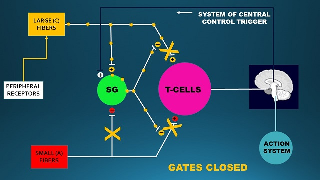 Fig. 4. The Gate Control System when the pain-analyzing system is under control during the session