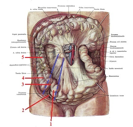 Science of Massage Institute » DISTORTION OF ILIOPSOAS THERAPY