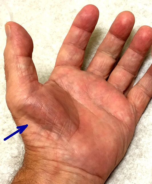 CARPAL-ATROPHY2a