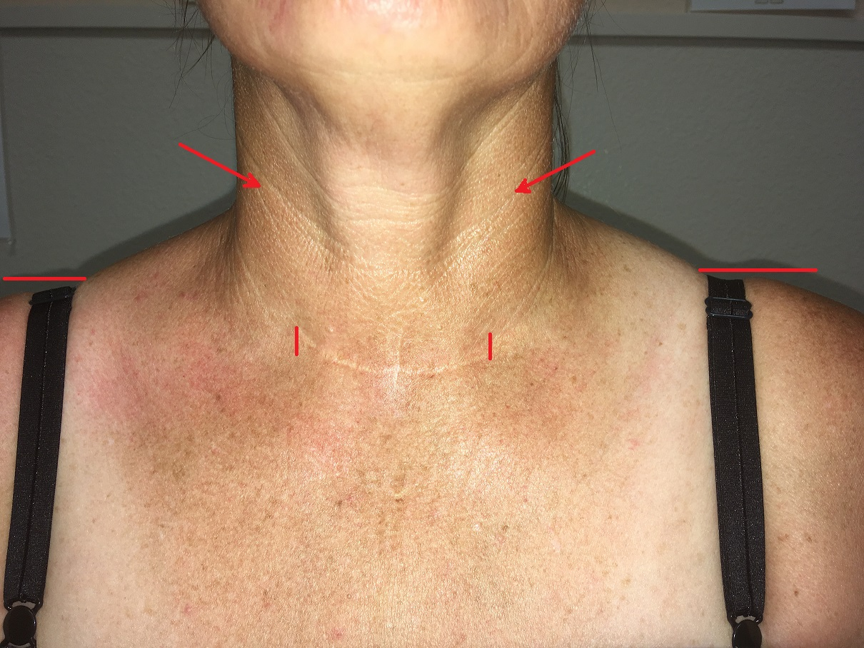 Science Of Massage Institute Medical Massage Vs Years Of Suffering After Thyroid Cancer Surgery