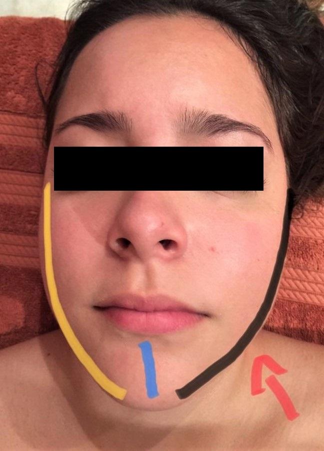Science Of Massage Institute Medical Massage Vs Severe Tmj Dysfunction